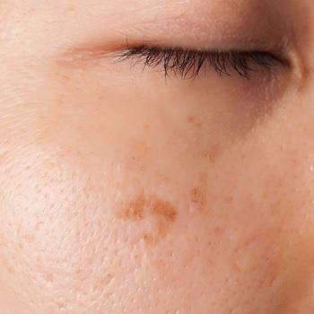 Hyperpigmentace v oblasti oka