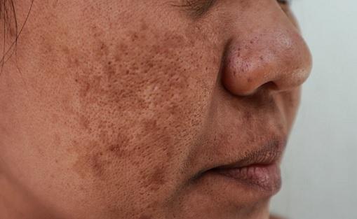 Hyperpigmentace na tváři