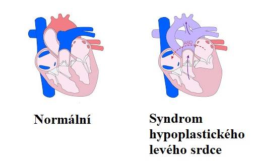 Syndrom hypoplastického levého srdce