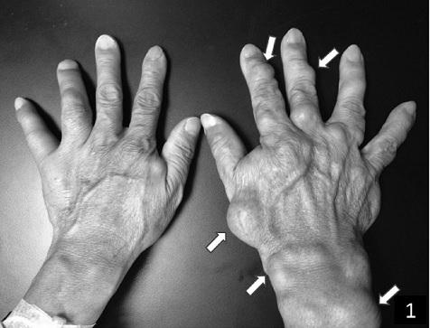 Maffucciho syndrom