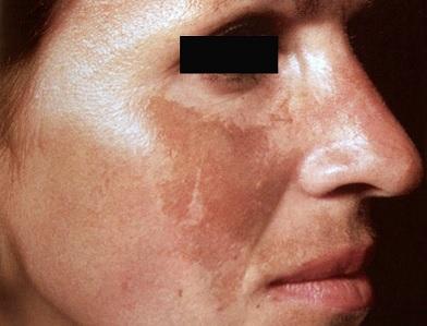 Melasma na tváři