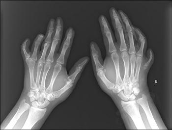 Pallister-Hallův syndrom je porucha, která ovlivňuje vývoj mnoha částí těla. Většina lidí s tímto stavem má prsty navíc