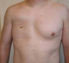 Klinický obraz Polandovy anomálie je dán absencí (aplázií) některých hrudních svalů