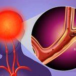 Prevence mrtvice (mozkové příhody) – jak ji zabránit a vyhnout se jí?