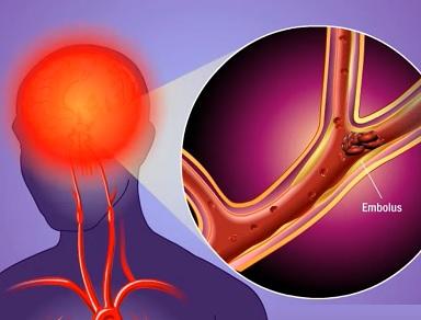 To, jestli vás potká infarkt nebo mrtvice, máte do velké míry ve svých rukou. Jak na prevenci před mrtvicí?