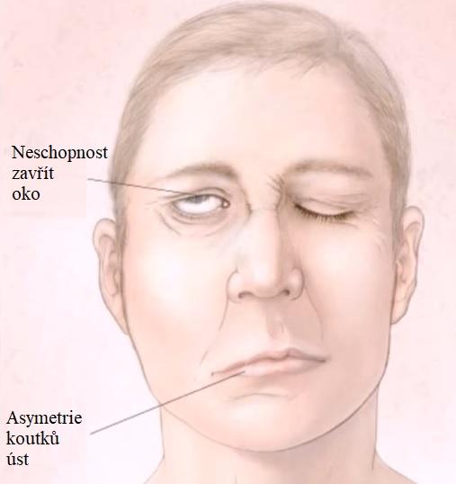 Toto jsou nejčastější příznaky Bellovy obrny