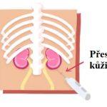 Biopsie ledvin (renální biopsie) – kdy, jak a proč se dělá?
