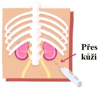 Biopsie ledviny je lékařský výkon, při němž je odebrán vzorek tkáně ledviny pomocí bioptické jehly.