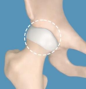 Dysplazie kyčelního kloubu souvisí s nesprávným vývojem nebo anomálií kloubní jamky.