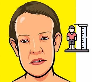 """Sotosův syndrom patří mezi tzv. """"overgrowth"""" syndromy, tedy syndromy charakterizované nadměrným růstem"""