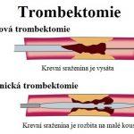 Trombektomie – co je to a kdy se provádí? Co je embolus vs trombus?