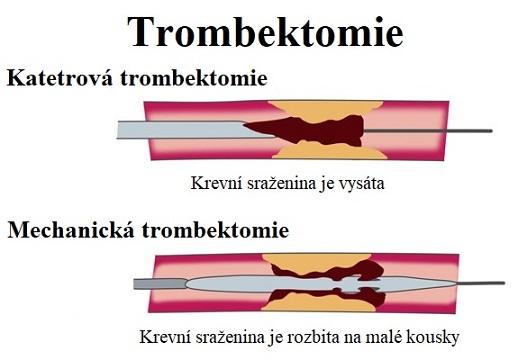 Vysvětlení trombektomie