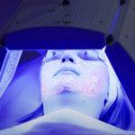 Světelná terapie (fototerapie) pro léčbu akné