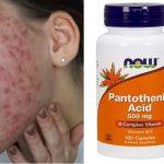 Kyselina pantothenová (vitamín B5) na akné – jak funguje a jak se používá?