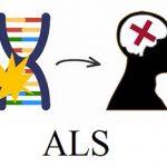 ALS (amyotrofická laterální skleróza, Lou Gehrigova choroba) – co je to – příznaky, příčiny a léčba