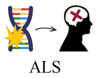 ALS (amyotrofická laterální skleróza, Lou Gehrigova choroba) - co je to - příznaky, příčiny a léčba