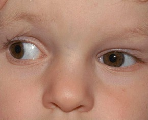 Duanův syndrom - příznaky, příčiny a léčba