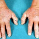 Duhringova choroba či Duhringova dermatitida (Dermatitis herpetiformis) – co je to – příznaky, příčiny a léčba