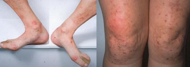 Fotografie pacientů s Duhringovou dermatitidou.