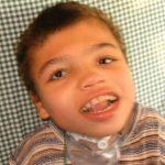 Frynsův syndrom – příznaky, příčiny a léčba