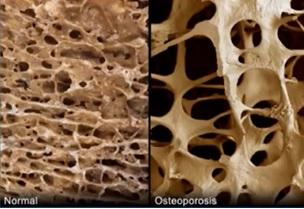 Jak léčit osteoporózu?
