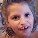 Pitt-Hopkinsův syndrom – příznaky, příčina a léčba