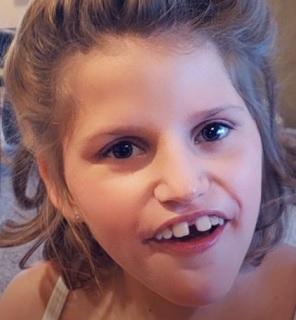 Pitt-Hopkinsův syndrom - příznaky, příčina a léčba