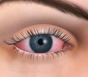 Suché oko patří mezi nejčastější oční potíže. Projevuje se podrážděním, zarudnutím, pálením, řezáním, únavou očí, pocitem cizího tělesa v oku.