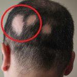 Alopecia areata – vše co potřebujete vědět – příznaky, příčiny a léčba