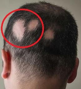 Alopecia areata - takto může vypadat