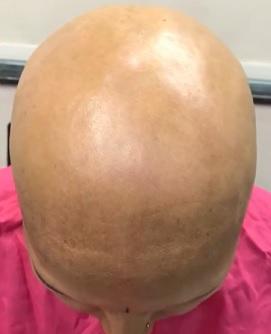 Alopecia universalis je velmi vzácná a nejzávažnější forma alopecie. Výsledkem je úplná ztráta vlasů i tělesného ochlupení.