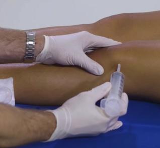 Lékaři provádějí artrocentézu pomocí jehly a stříkačky
