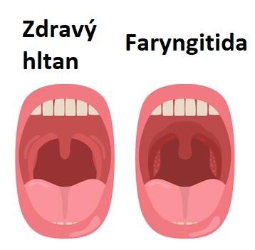 Faryngitida
