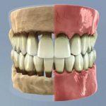 Fáze paradentózy (zánětu dásní) – včasná léčba je zásadní