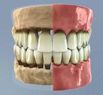 Fáze paradentózy (zánětu dásní) - včasná léčba je zásadní