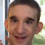 Mowat-Wilsonův syndrom – příznaky, příčina a léčba