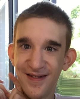 Mowat-Wilsonův syndrom