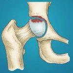 Osteonekróza (odumření kosti, avaskulární nekróza) – co je to – příznaky, příčiny a léčba