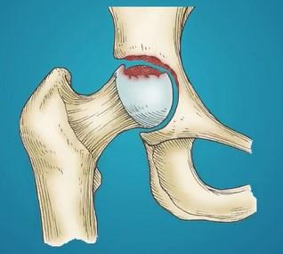 Vzhledem k obtížnosti terapie osteonekrózy je potřeba se cíleně zaměřit především na preventivní opatření a minimalizovat rizika vzniku
