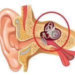 Otoskleróza – co je to – příznaky, příčiny a léčba či operace