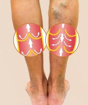 Ve zdravých žilách nepřetržitě proudí krev z končetin zpět k srdci. Chlopně v žilách nohou pomáhají zabránit zpětnému toku krve.