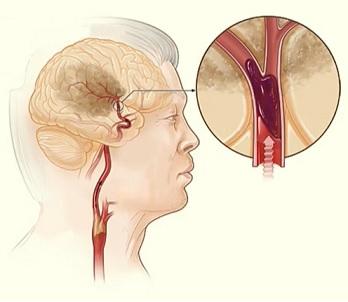 Ischemické cévní mozkové příhody (iCMP) tvoří 88 % všech CMP, zbylých 12 % připadá na hemoragické CMP.