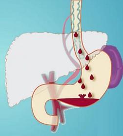 Jícnové varixy jsou označením pro vznik rozšířených žilních pletení ve stěně jícnu. Jde o stav velice nebezpečný, který může dotyčného snadno usmrtit.