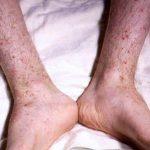 Meningokokcémie (meningokoková bakterémie) – co je to – příznaky, příčiny a léčba