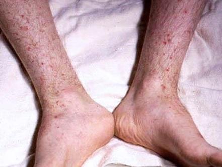 Tato fotografie zobrazuje fialové nekrotické léze na nohou osoby, která má meningokokcemii.