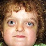 Pfeifferův syndrom – příznaky, příčiny a léčba