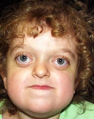 Pfeifferův syndrom - příznaky, příčiny a léčba