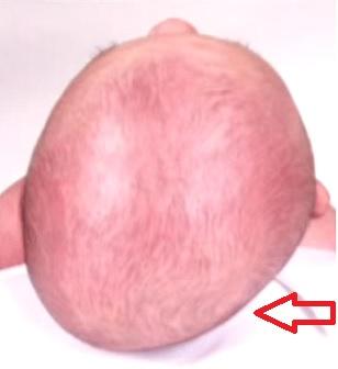 Plagiocefalie - zploštění lebky