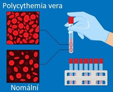 Bez léčby může být polycythemia vera život ohrožující. Správná lékařská péče však může pomoci zmírnit příznaky