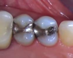Amalgámové zubní výplně
